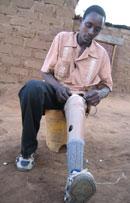 Alex sitting with lower leg prosthesis